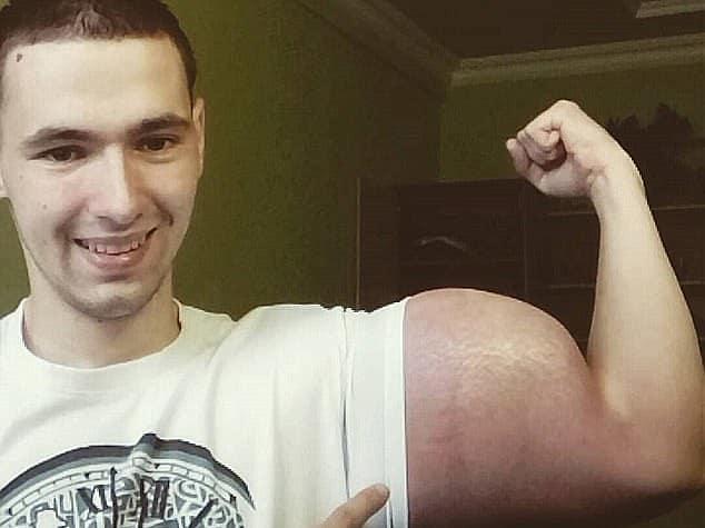 תמונות קשות: פופאי הרוסי שמילא את זרועותיו ב-6 ליטרים של וזלין נאלץ לעבור ניתוח חירום